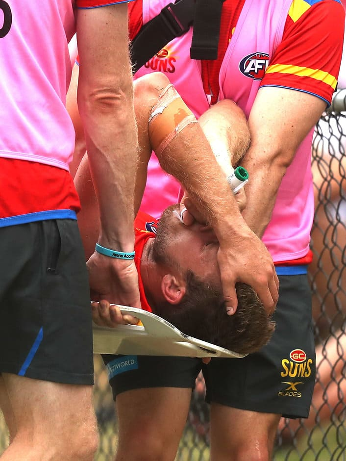 MERRIMAC, AUSTRALIA - FEBRUARY 19: Sam Day of the Suns leaves the ground injured during the AFL 2017JLT Community Series match between the Gold Coast Suns and the Brisbane Lions at Kombumerri Park on February 19, 2017 in Merrimac, Australia. (Photo by Sean Garnsworthy/AFL Media)