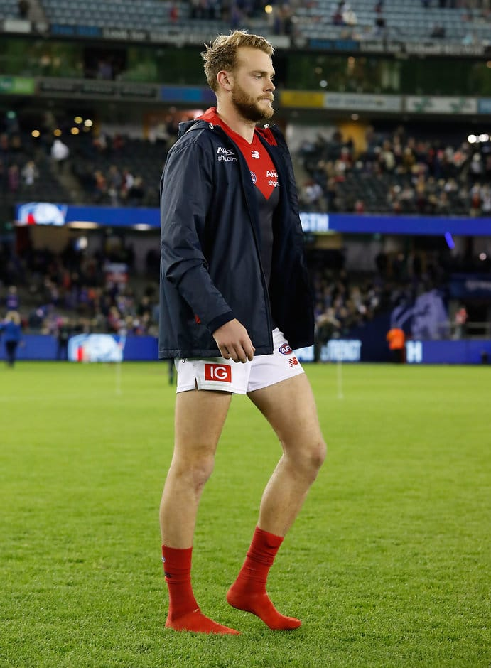MELBOURNE, AUSTRALIA - JUNE 18: Jack Watts of the Demons is seen injured during the 2017 AFL round 13 match between the Western Bulldogs and the Melbourne Demons at Etihad Stadium on June 18, 2017 in Melbourne, Australia. (Photo by Adam Trafford/AFL Media)
